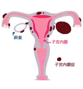 子宮内膜症のイラスト